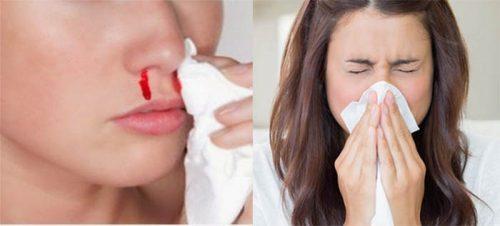 Triệu chứng bệnh ung thư mũi