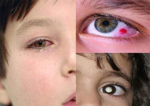 Triệu chứng của bệnh ung thư mắt