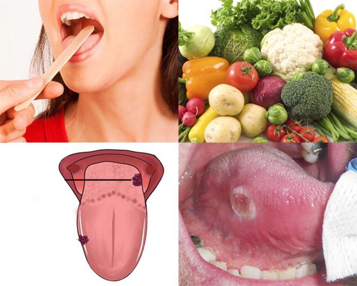 Ung thư lưỡi
