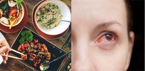 Ung thư mắt kiêng ăn gì?