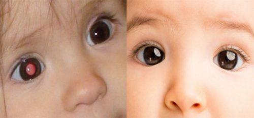 Ung thư mắt ở trẻ em