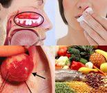 Ung thư mũi