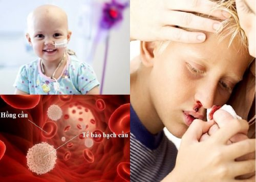 Bệnh ung thư máu ở trẻ em