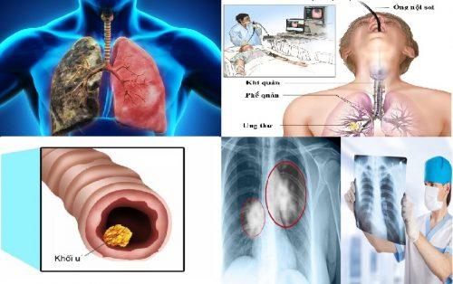 Biện pháp chẩn đoán bệnh ung thư phế quản