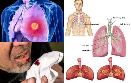 Biểu hiện ung thư phế quản di căn
