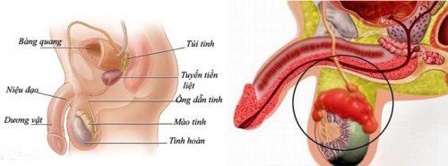 Biểu hiện ung thư tinh hoàn giai đoạn cuối