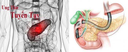 Các biện pháp chẩn đoán bệnh ung thư tuyến tụy