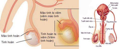 Các biện pháp chẩn đoán ung thư tinh hoàn