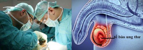 Các biện pháp điều trị ung thư tinh hoàn