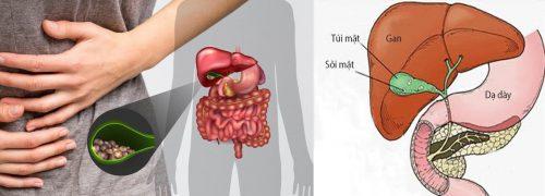 Các giai đoạn bệnh ung thư túi mật