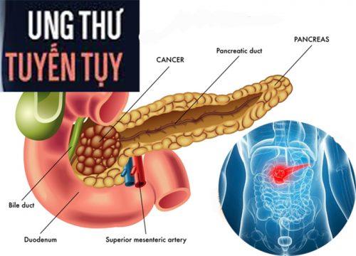 Các giai đoạn bệnh ung thư tuyến tụy