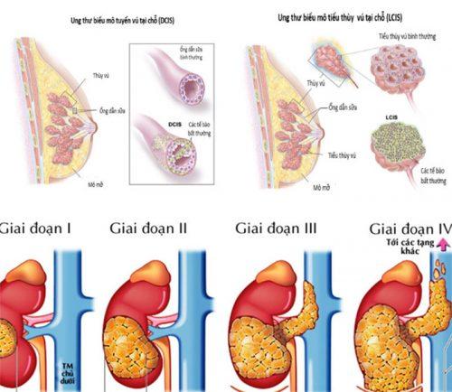 Các giai đoạn của ung thư biểu mô