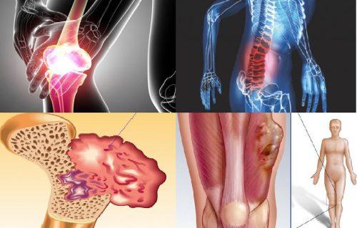 Các giai đoạn phát triển của bệnh ung thư xương