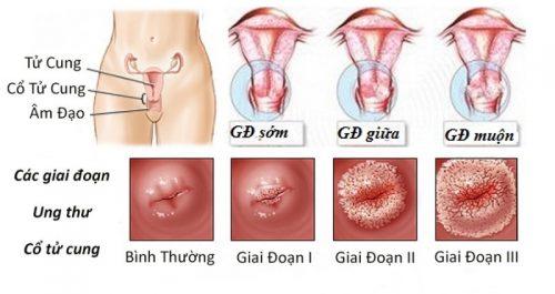 Các giai đoạn ung thư cổ tử cung