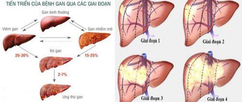 Các giai đoạn ung thư gan
