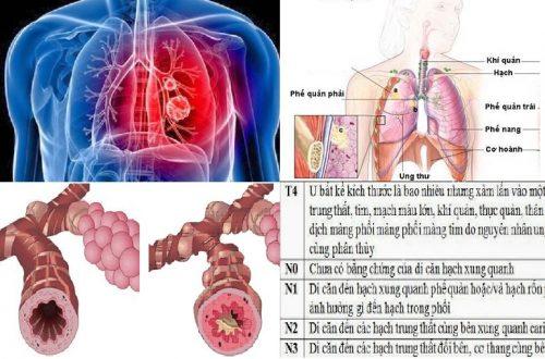Các giai đoạn ung thư phế quản