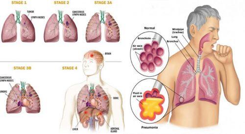 Các giai đoạn ung thư phổi