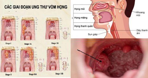 Các giai đoạn ung thư vòm họng