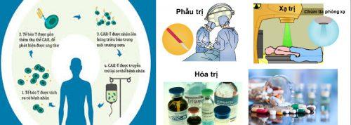 Các liệu pháp điều trị ung thư gan