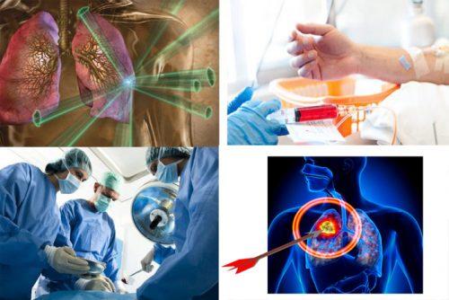 Các liệu pháp điều trị ung thư phổi