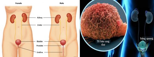 Các loại ung thư bàng quang