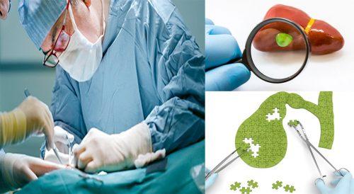 Các phương pháp điều trị bệnh ung thư túi mật