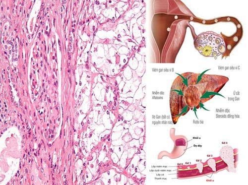 Cách phòng chống ung thư biểu mô