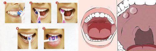 Cách phòng ngừa ung thư miệng