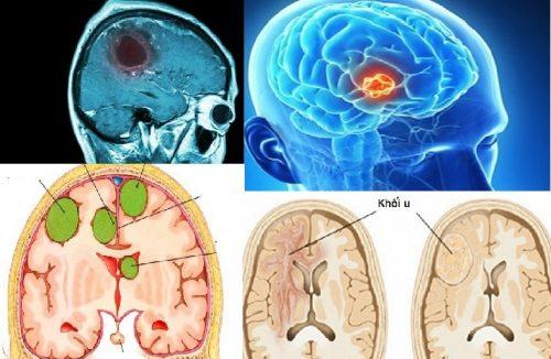 Chẩn đoán bệnh ung thư não