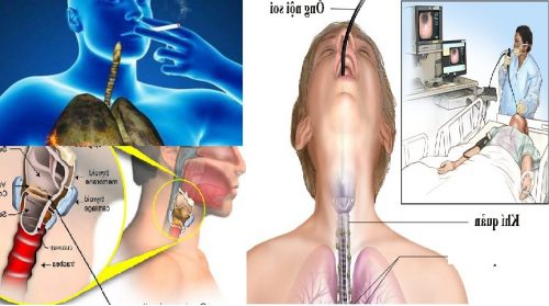 Chẩn đoán ung thư khí quản