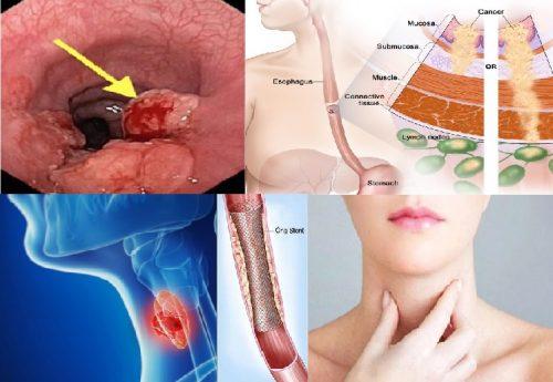 Chữa ung thư thực quản giai đoạn cuối
