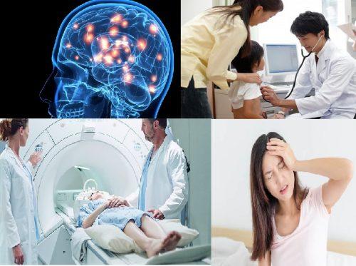 Có nên tầm soát ung thư não không?