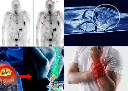 Điều trị ung thư di căn xương