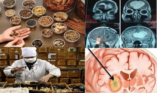 Điều trị ung thư não bằng Đông y