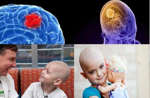 Điều trị ung thư não ở trẻ em