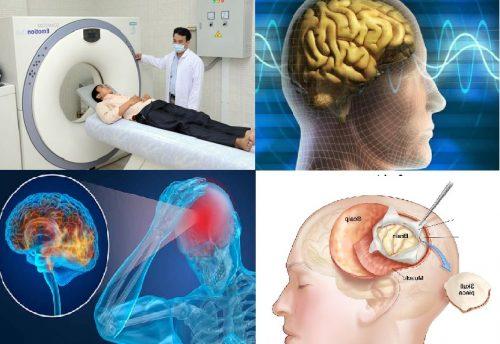 Điều trị ung thư não ra sao?