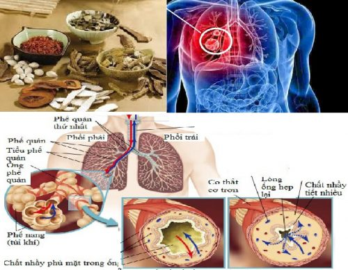 Điều trị ung thư phế quản bằng Đông y