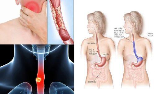 Điều trị ung thư thực quản