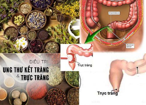 Điều trị ung thư trực tràng bằng Đông y