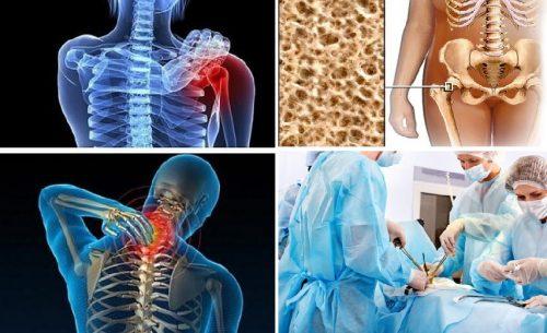 Điều trị ung thư xương