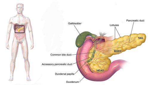 Đối tượng nguy cơ bệnh ung thư tuyến tụy