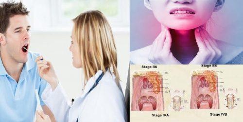 Khám tầm soát ung thư vòm họng như thế nào?