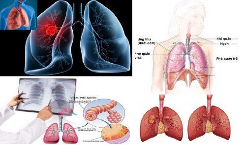 Lưu ý khi chữa bệnh ung thư phế quản