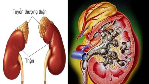 Nguyên nhân bệnh ung thư thận