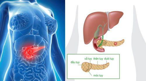 Nguyên nhân bệnh ung thư tuyến tụy