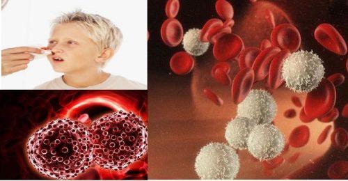 Nguyên nhân gây ung thư máu