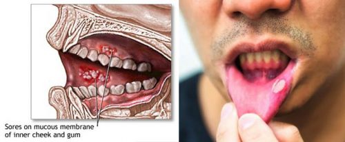 Nguyên nhân gây ung thư miệng