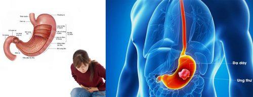 Những ai dễ bị ung thư dạ dày?