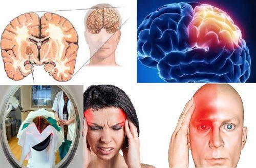 Phòng ngừa bệnh ung thư não