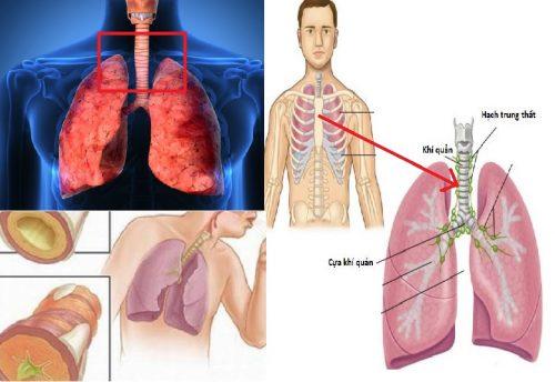 Phòng ngừa ung thư khí quản